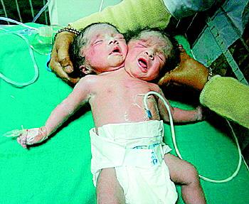 印度女子产下双头同体女婴